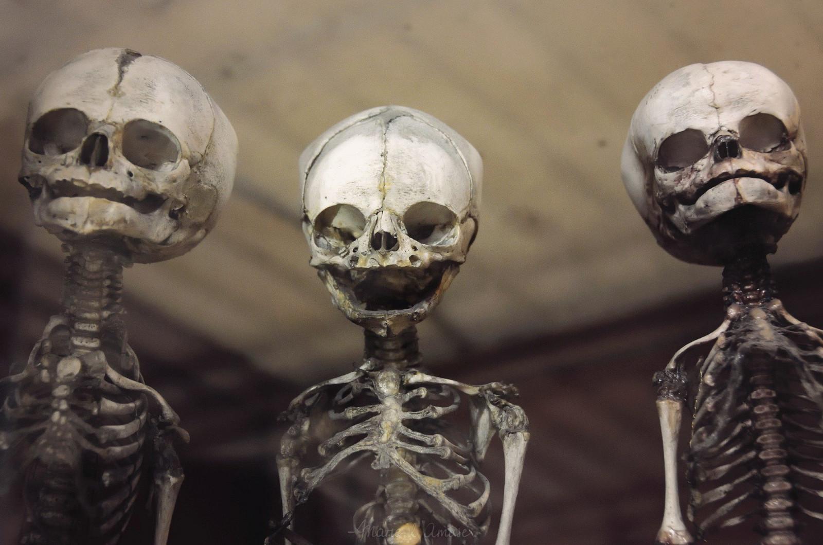 Первый, скелет в картинках